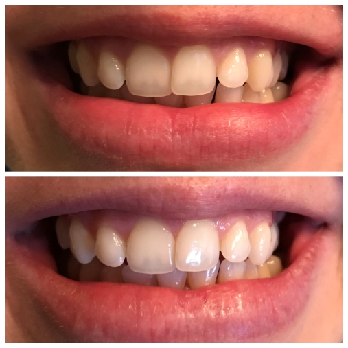 Smile Brilliant Whitening Results